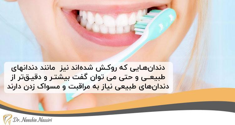 مراقبت از دندان ها برای افزایش عمر روکش دندان