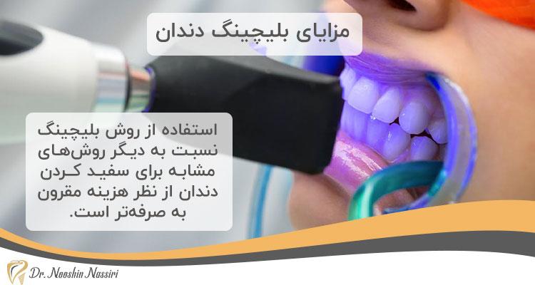 مزایای بلیچینگ دندان