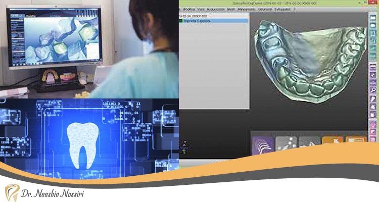 کدکم دندانسازی دیجیتال
