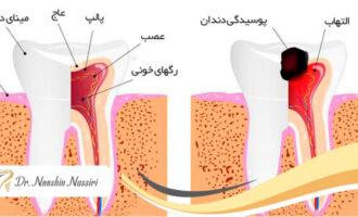 درمان ریشه دندان یا عصب کشی