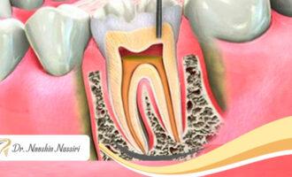 عصب کشی دندان با دستگاه روتاری