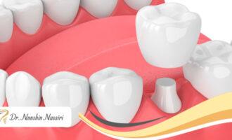 آیا روکش دندان باعث پوسیدگی میشود؟