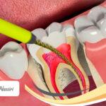 دلیل درد دندان بعد از عصب کشی
