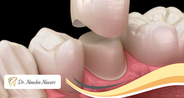 تعویض یا برداشتن روکش دندان امکان پذیر است؟