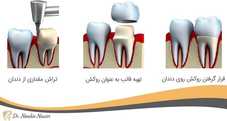 روکش دندان باعث پوسیدگی می شود و باید مراقب بود