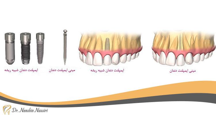 چه روشهایی برای کاشت دندان افراد دیابتی وجود دارد؟