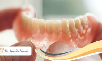 انواع پروتز ثابت و متحرک دندان چیست؟