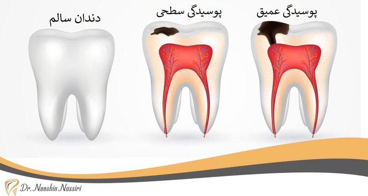 انواع پوسیدگی دندان و درمان ریشه دندان