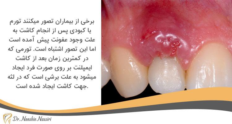 تورمی که در کمترین زمان بعد از کاشت ایمپلنت بر روی صورت فرد ایجاد میشود به علت برشی است که در لثه جهت کاشت ایجاد شده است
