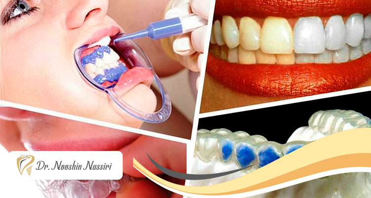 بلیچینگ دندان یا سفید کردن دندان