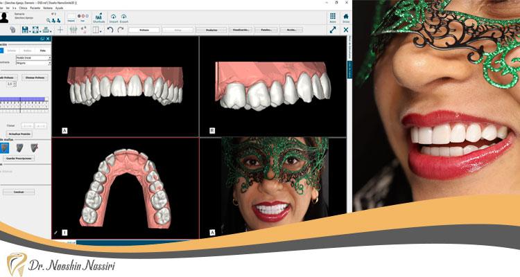 طراحی لبخند دیجیتال