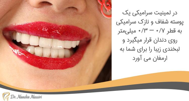 لمینت سرامیکی در دندانپزشکی زیبایی در کلینیک دکتر نوشین نصیری