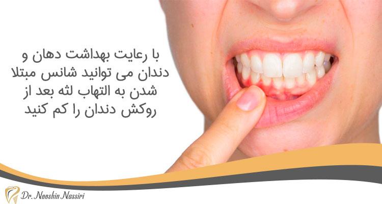 التهاب لثه بعد از روکش دندان