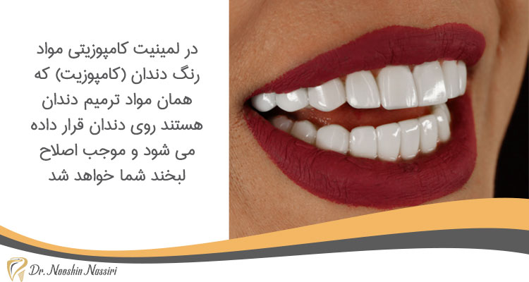 لمینت کامپوزیتی در دندانپزشکی زیبایی در کلینیک دکتر نوشین نصیری