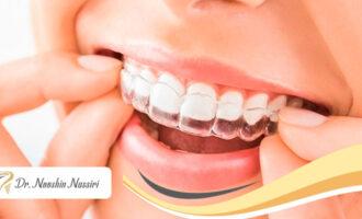 نایت گارد دندان (night guard teeth)