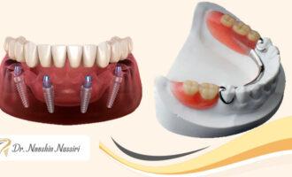 پروتز دندان بهتر است یا ایمپلنت