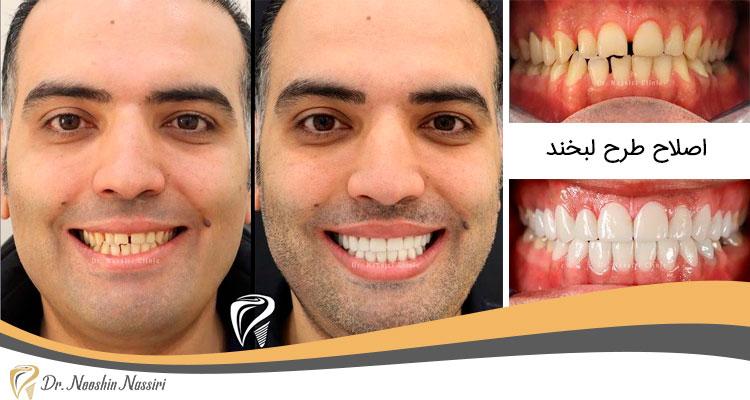 اصلاح رنگ و سایز دندانها و همچنین بستن فواصل بین دندانها با 16 واحد پرسلن لمینیت