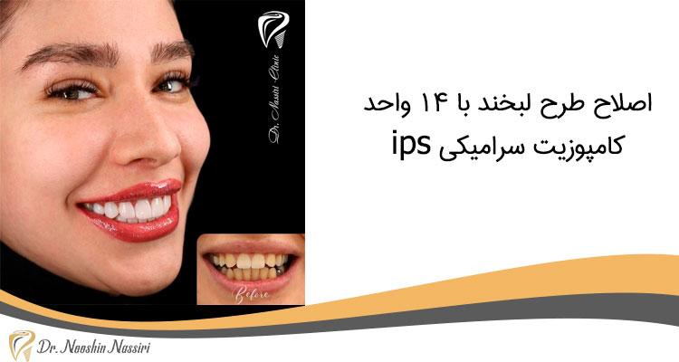 اصلاح طرح لبخند با 14 واحد کامپوزیت سرامیکی ips