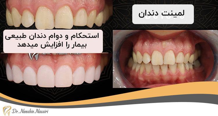 استحکام دندان طبیعی با لمینت دندان