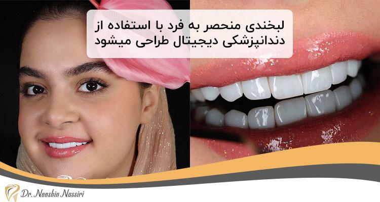 اصلاح طرح لبخند با لمینت دیجیتال دندان
