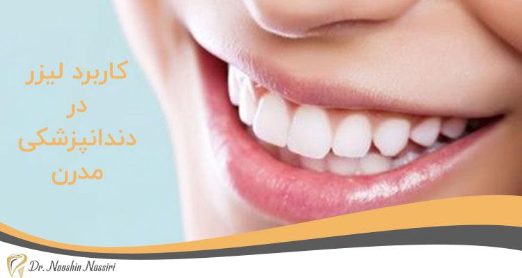 کاربرد لیزر در دندانپزشکی دیجیتال و مدرن