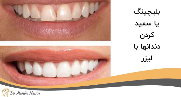 بلیچینگ یا سفید کردن دندانها با لیزر