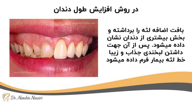 جراحی زیبایی لثه با افزایش طول تاج دندان بیمار
