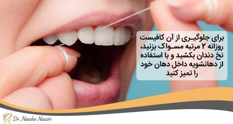 جلوگیری از انواع بیماری لثه