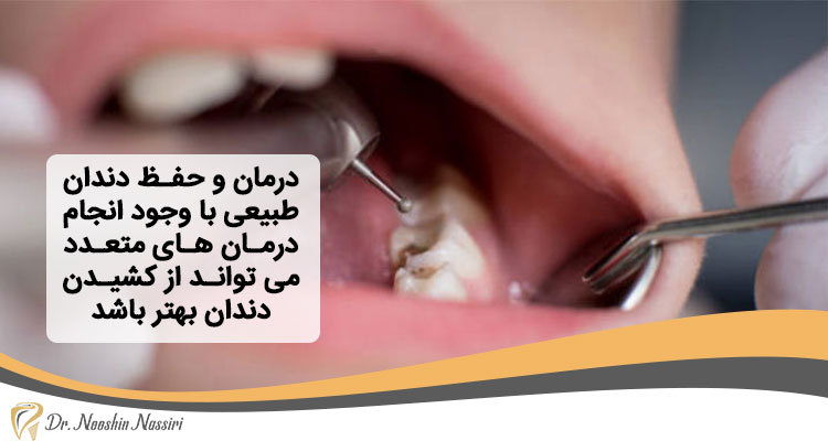 حفظ دندان طبیعی با عصب کشی