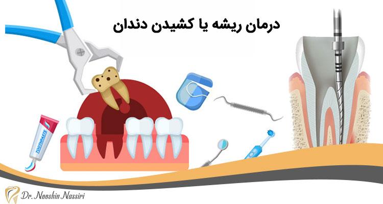 درمان ریشه بهتر است یا کشیدن دندان