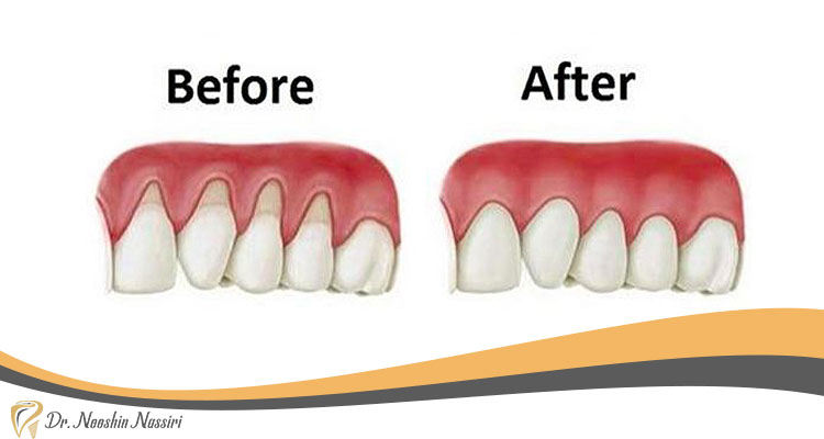 قبل و بعد از جراحی زیبایی لثه