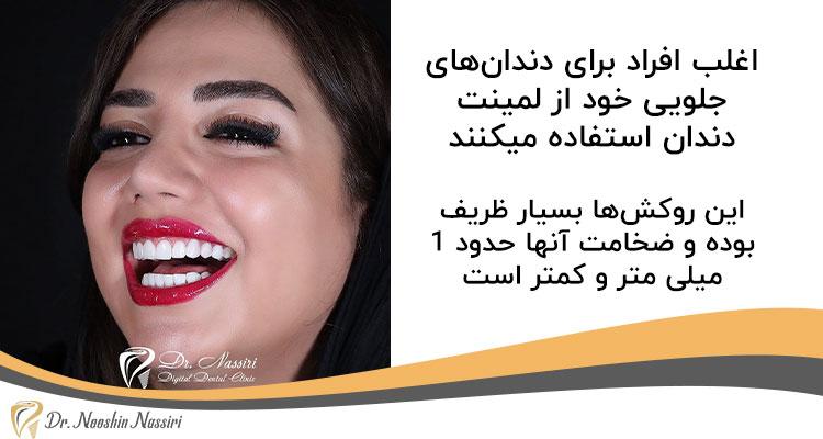 لمینت سرامیکی دندان های جلویی نمونه کار دکتر نوشین نصیری