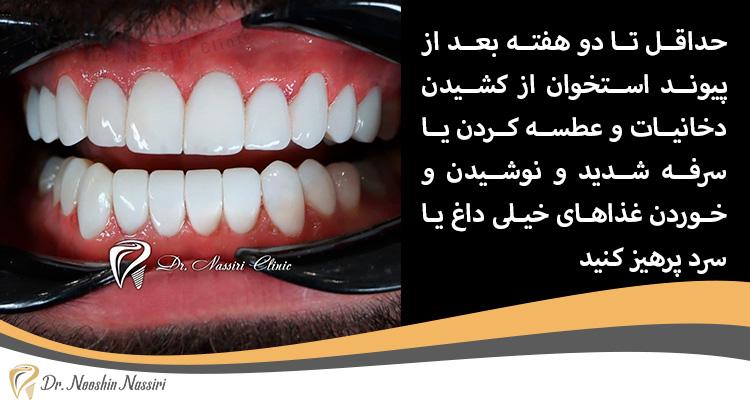 مراقبت های بعد از پیوند و کاشت دندان