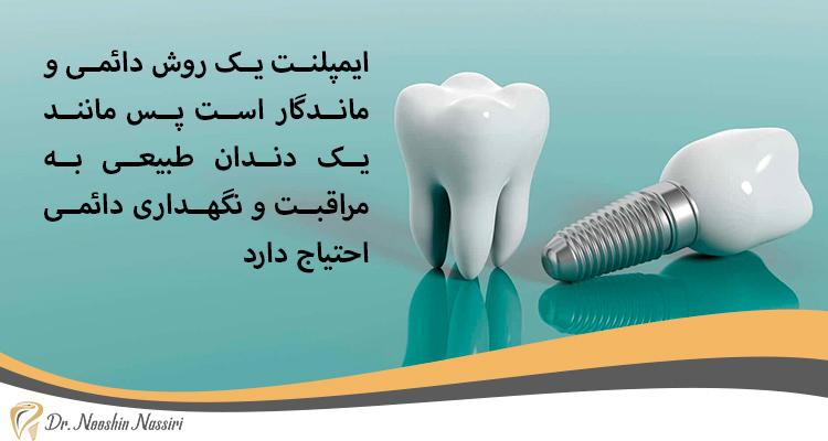 ایمپلنت دندان ماندگار و طبیعی