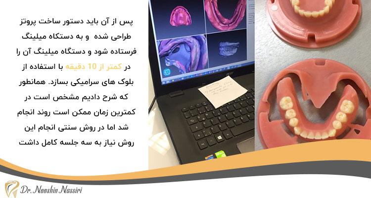 مزیت دندانپزشکی دیجیتال نسبت به روش سنتی در ساخت پروتز دیجیتال دندان