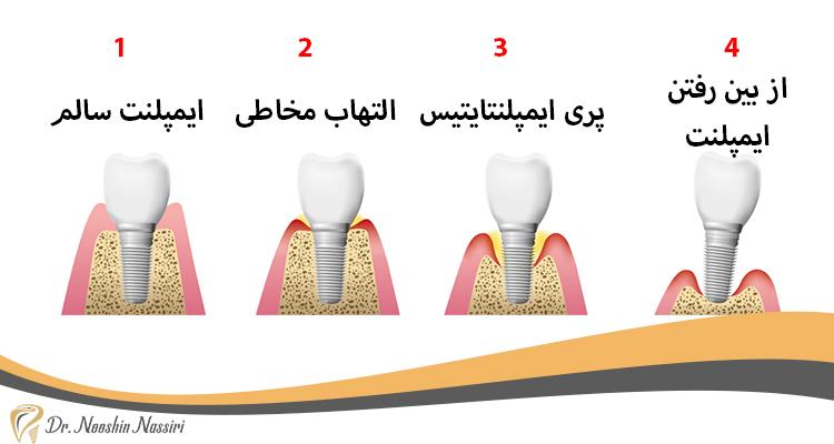 مراحل پری ایمپلنت