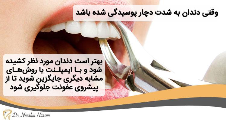 کشیدن دندان پوسیده بهتر است