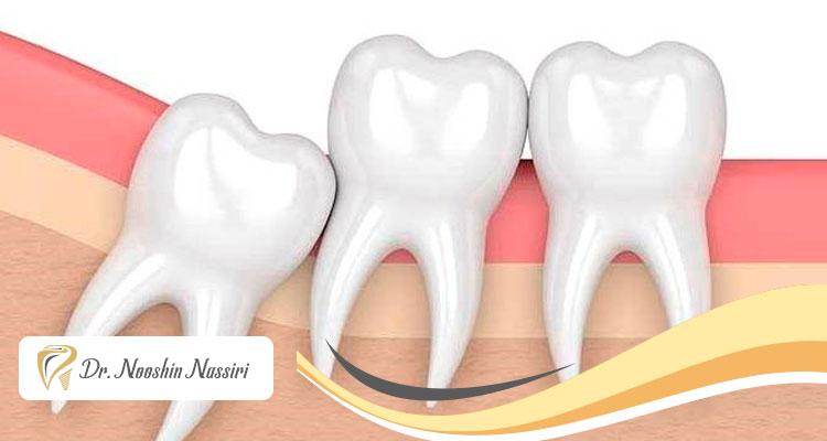 انواع دندان عقل و مزایا و معایب کشیدن آنها