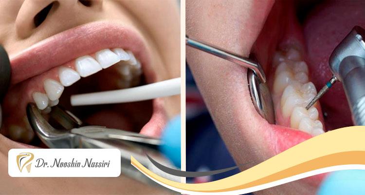 درمان ریشه یا کشیدن دندان