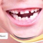رویش دندان های شیری و دائمی کودکان