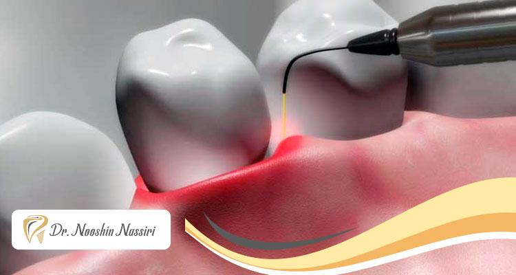 کاربرد لیزر در درندانپزشکی مدرن
