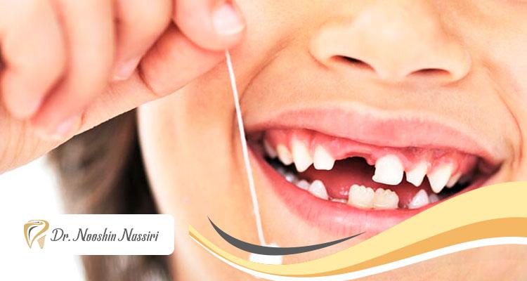 آسیب پوسیدگی دندان شیری بر دندان دائمی