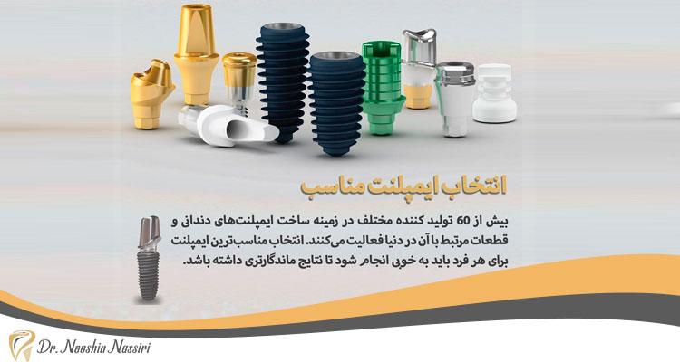 انتخاب ایمپلنت مناسب به عنوان یکی از راه های مراقبت از ایمپلنت دندان