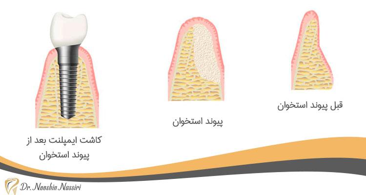 مراحل پیوند استخوان و کاشت ایمپلنت به صورت تصویری