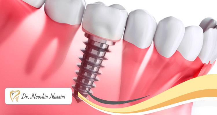مراقبت از ایمپلنت دندان و افزایش طول عمر