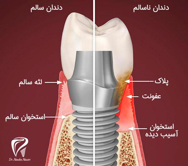 مقایسه دندان ایمپلنت سالم با ناسالم