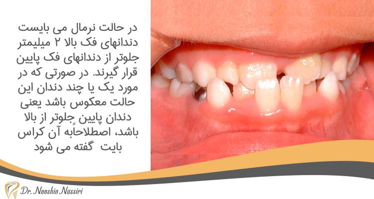کراس بایت در دندان کودکان