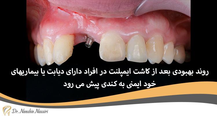 دیابت و بیماری خود ایمنی و ایمپلنت دندان