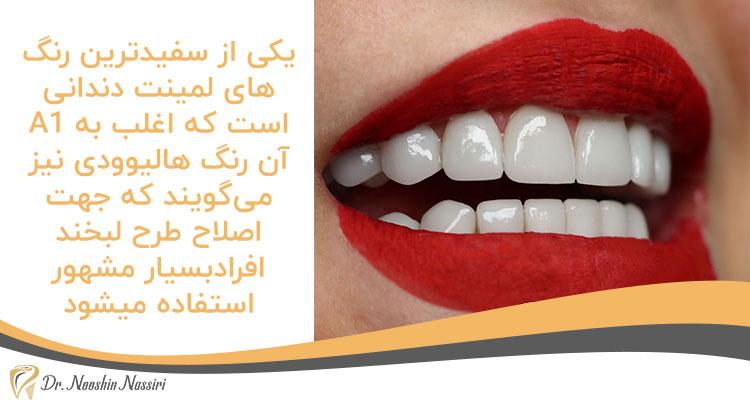 رنگهای لمینت دندانیA1 از سفیدترین رنگ های لمینت