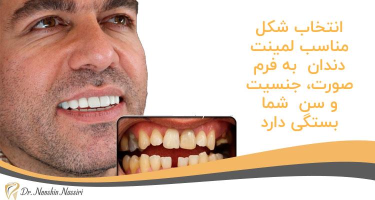 شکل لمینت دندان